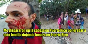 Video: Me Dispararon En La Cabeza Por Grabar A Esta Familia Dejando Basura En La Playa En PR
